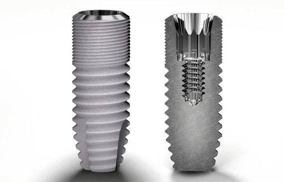 Buy connectors for dental prosthesis lingual bar and continuous