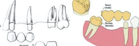 Buy connectors for dental prosthesis This mixture enables