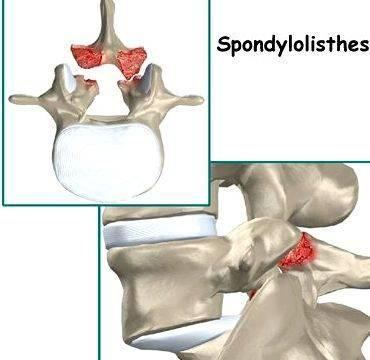 Physical Therapy for Spondylolisthesis