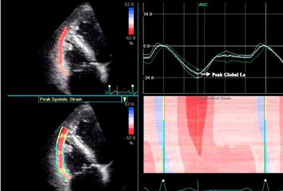 Speckle tracking echocardiography thesis writing showed improvement